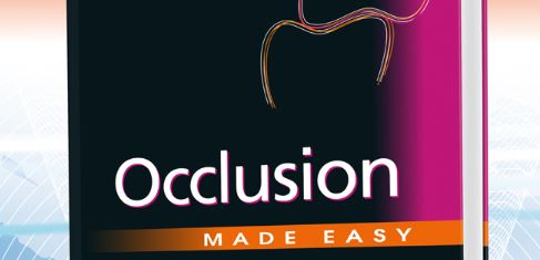 Occlusion Made Easy